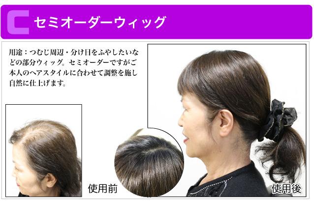 用途:つむじ周辺・分け目をふやしたいなどの部分ウィッグ。セミオーダーですがご本人のヘアスタイルに合わせて調整を施し自然に仕上げます。